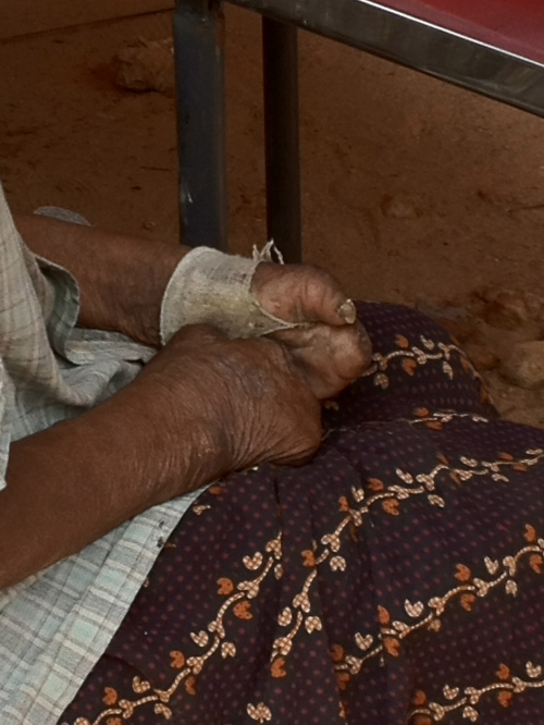A leper's hands. | 22 March 2012 | Tenali, India