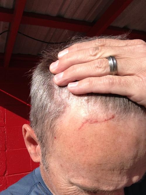 Doyle's Scar